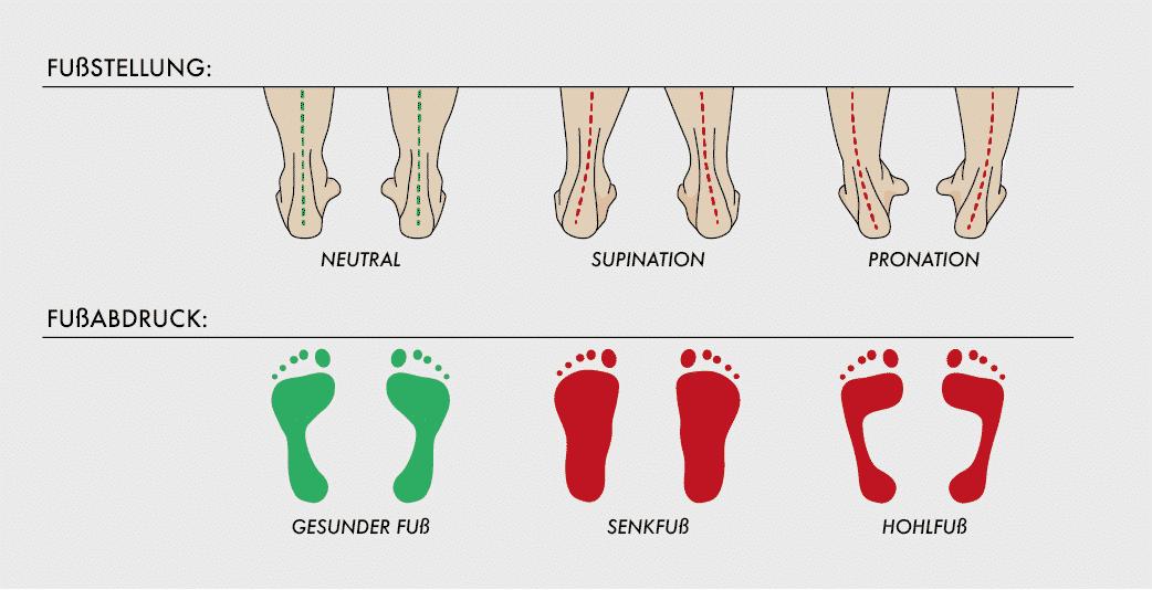Welche Fußstellung haben Sie? Dies ist wichtig, wenn Sie Tennisschuhe im eigenen Test finden möchten.